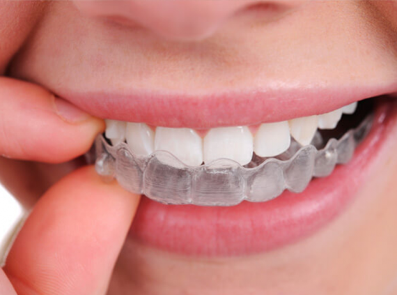 Dentist in Kenosha, Dental mouth guards kenosha, dental care kenosha