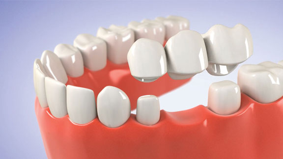 dental crowns and bridges, dentures kenosha, dental bridge kenosha, tooth implant kenosha