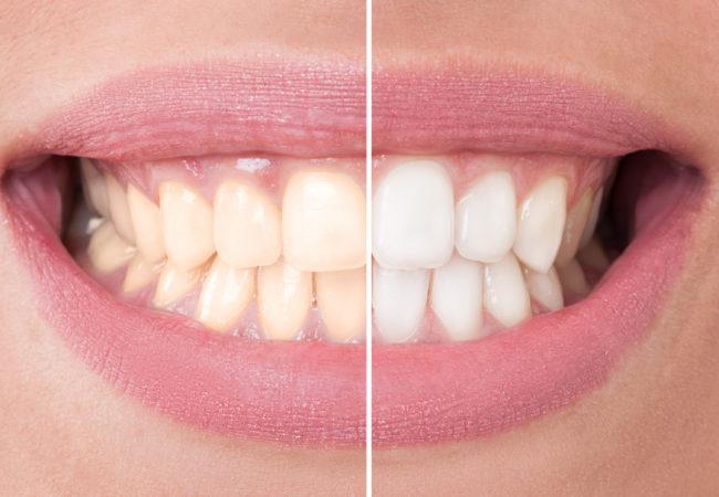 teeth bleaching kenosha, at home teeth whitening kenosha, teeth whitening trays, whitening strips,