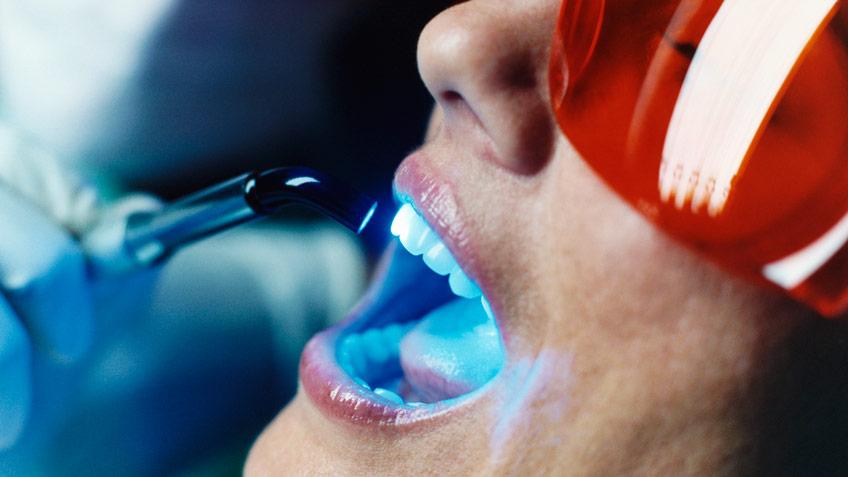 teeth whitening kenosha, teeth whitening services, dentist teeth whitening