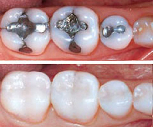tooth fillings, tooth colored fillings, amalgam fillings, composite resin filling