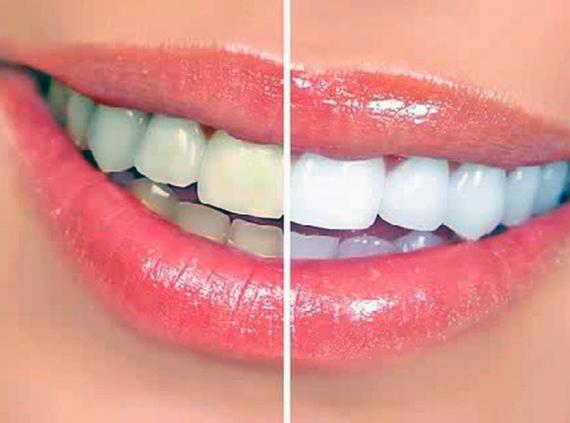 Dental care kenosha, dentist in kenosha, pleasant prairie dentist