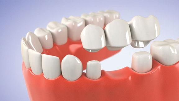 dental crowns and bridges kenosha, dentures kenosha, dental bridge kenosha, tooth implant kenosha