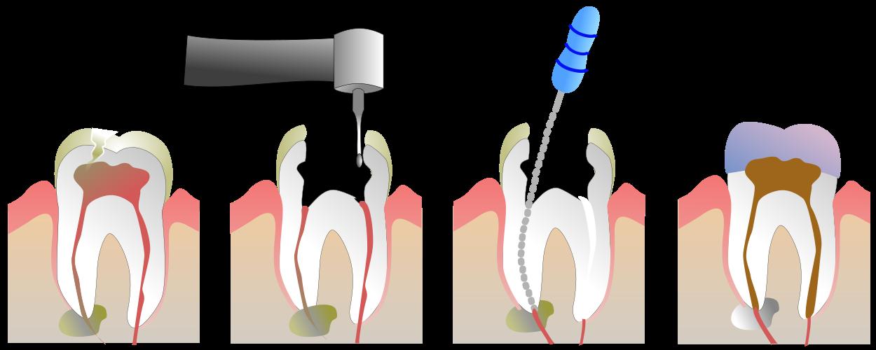 root canal kenosha, kenosha root canal, root canal dentist kenosha