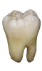 tooth extractions kenosha, kenosha tooth extraction, cavity kenosha