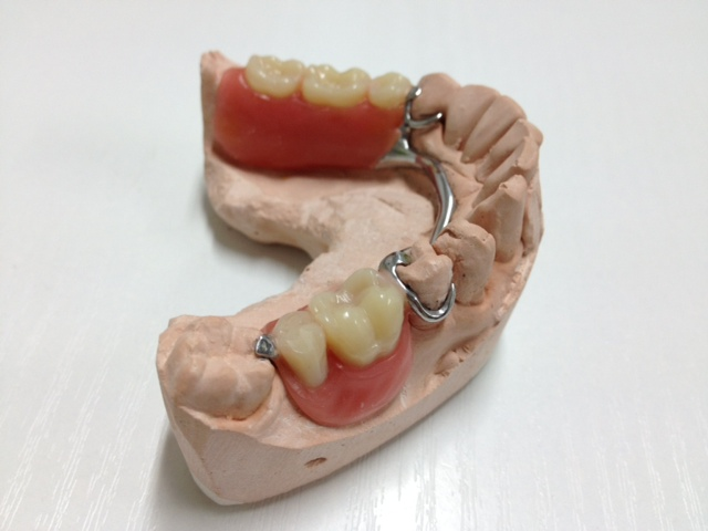 dentures, partial dentures, sps dental