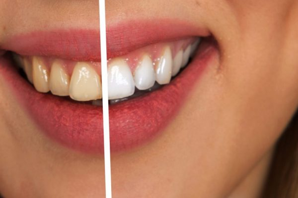 teeth whitening in kenosha, kenosha teeth whitening, whitening teeth in kenosha