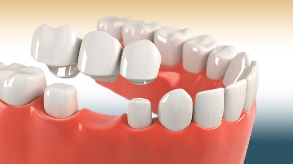 dental bridges in kenosha, kenosha dental bridge services, dentists offering dental bridges